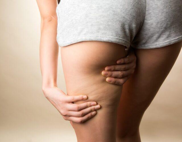 下半身だけが太っていると気になる方には骨盤矯正が効果的!?